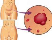 симптом Тужилина при панкреатите