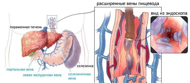 варикоз вен