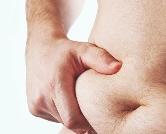 бандажирование желудка при ожирении