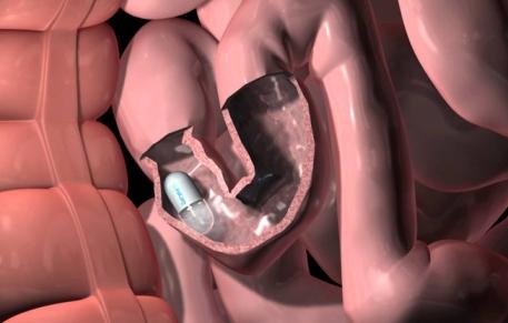 капсула в кишечнике