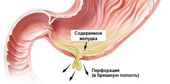 перфорация стенки желудка