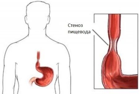 стеноз